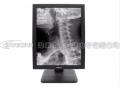 安立信2M医用灰阶显示器,2M高清液晶黑白显示屏