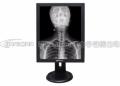 20.8寸医用液晶灰阶显示器,3M医用竖屏显示屏