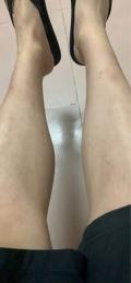 女生的小腿腿毛很多 不需要刮腿毛的持久脫毛方法