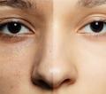 脸上毛孔粗大有黑头2个低成本实用妙招绝对管用