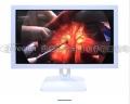 安立信27寸内窥手术医用显示器,4K高清医疗监视器
